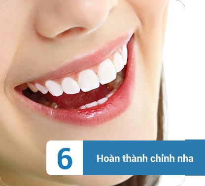 quy trình niềng răng
