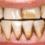 Khe răng bị đen do đâu – làm thế nào để sạch dứt điểm?
