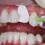 Do đâu bọc răng sứ không khít – Cách xử lý nào hiệu quả, an toàn?