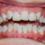 Hiện nay chỉnh răng mọc lệch bao nhiêu tiền?