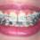 Niềng răng cửa bị thưa bao nhiêu tiền? – Nha khoa quốc tế Á Âu