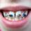 Niềng răng thưa và hô – giải pháp hiệu quả toàn diện