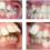 Thay răng mọc lệch bằng cách nào an toàn hiệu quả?