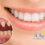 Bọc răng sứ có bền không? – Giải đáp thắc mắc