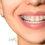 Hướng dẫn vệ sinh trong quá trình niềng răng